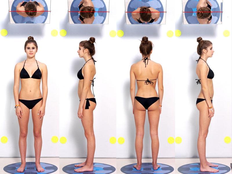 Analisi fotografica della postura, vista da diverse ancolazioni