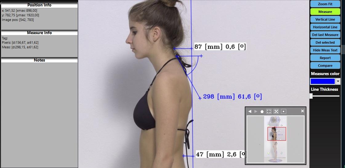 Software per l'analisi fotografica della postura